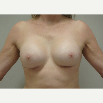 45-54 year old woman treated with Breast Augmentation after 3520756