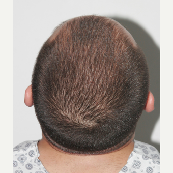 26 years old man treated with FUE Hair Transplant before 3068901