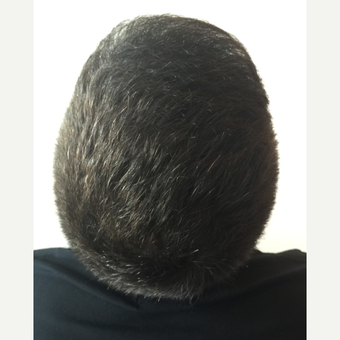 26 years old man treated with FUE Hair Transplant after 3068901