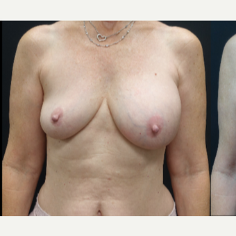 35-44 year old woman treated with Breast Implant Revision before 3731537