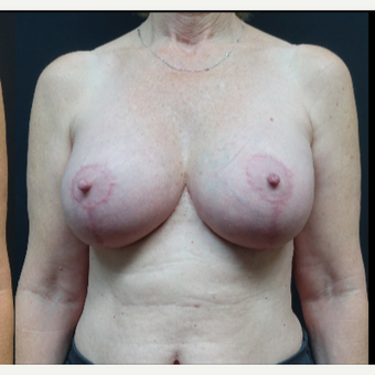 35-44 year old woman treated with Breast Implant Revision after 3731537