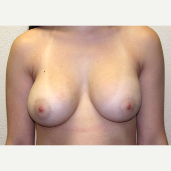 22 year-old woman treated with 330cc Saline-filled, Silicone-shelled Breast Implants. after 3358572