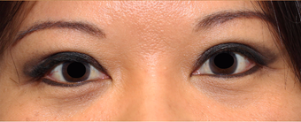 Double eyelid surgery after 3166895