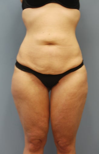 29 y/o woman with massive weight loss treated with body contouring surgery.