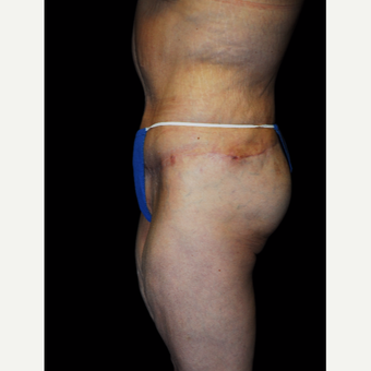 45-54 year old woman treated with Body Lift after 3142427