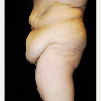 45-54 year old woman treated with Body Lift before 3142427