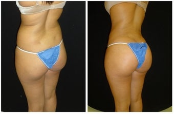 Brazilian Butt Lift after 1374421