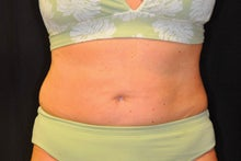 CoolSculpting to lower abdomen and hip rolls before 734625