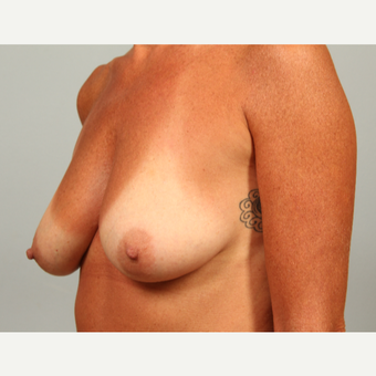 43 year old patient with severe breast ptosis treated with reshaping type breast lift before 3281616