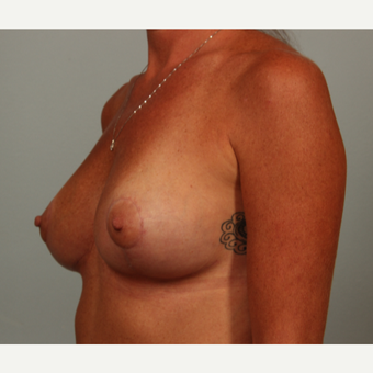 43 year old patient with severe breast ptosis treated with reshaping type breast lift after 3281616