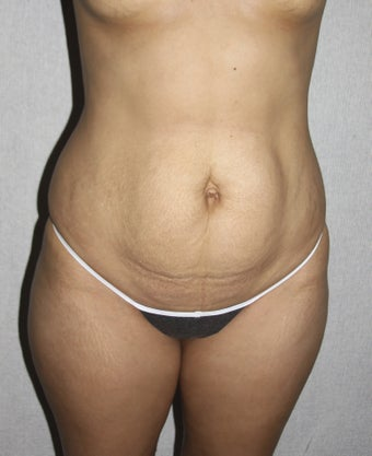 Tummy Tuck before 1327791
