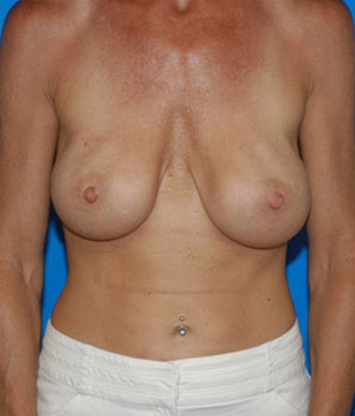 Breast Revision before 911540