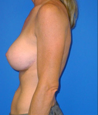 Breast Revision 911540