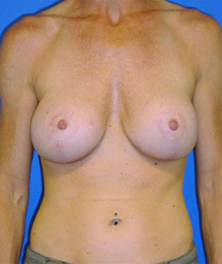 Breast Revision after 911540