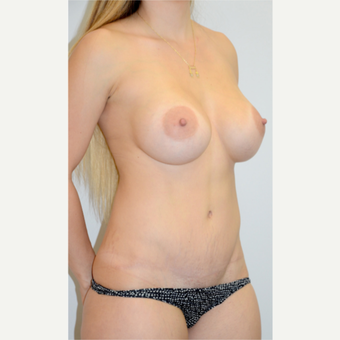 Breasts and tummy; Mommy Makeover (tummy tuck, breast implants, circumferential liposculpture)