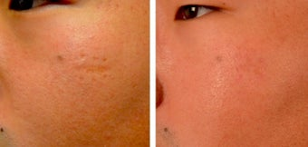 25-34 year old man treated with Microneedling before 2048126