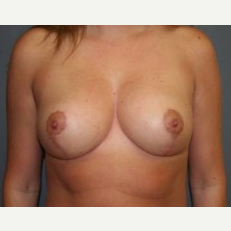 25-34 year old woman treated with Breast Lift after 3339560