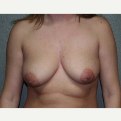 25-34 year old woman treated with Breast Lift before 3339560