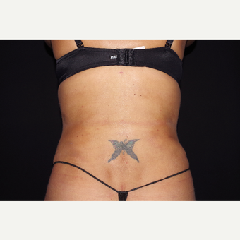 35-44 year old woman treated with Liposuction and Abdominoplasty after 3644651