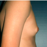 15 year old man treated with Male Breast Reduction before 3720898