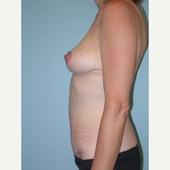 45 year old woman treated with Mommy Makeover after 3201370