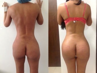 Buttock Augmentation before 1348586