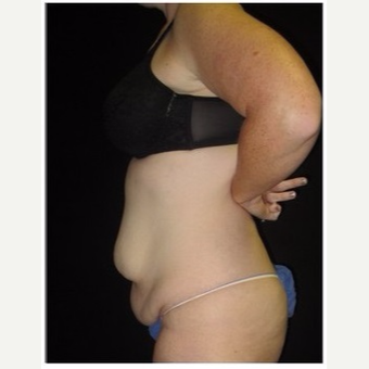 25-34 year old woman treated with Tummy Tuck before 3043437