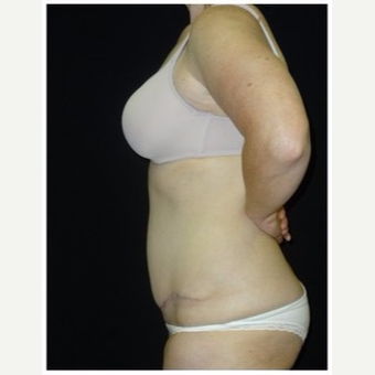 25-34 year old woman treated with Tummy Tuck after 3043437