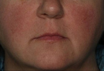 Female Treated for Rosacea/Photoaging before 772032