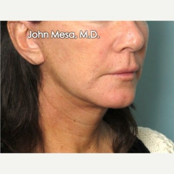 35-44 year old woman treated with Neck Lift after 2014308