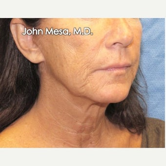 35-44 year old woman treated with Neck Lift before 2014308