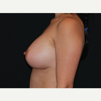 35-44 year old woman treated with Breast Implants after 3651092