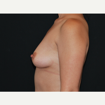35-44 year old woman treated with Breast Implants before 3651092