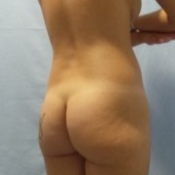 Buttock implants combined with fatgrafting before 2061388
