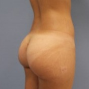 Buttock implants combined with fatgrafting after 2061388