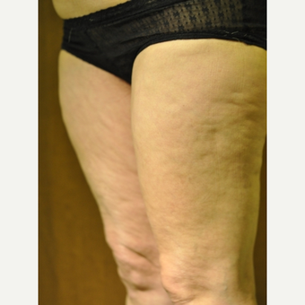 45-54 year old woman, cellulite treated with TriPollar RF
