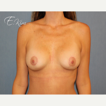 25-34 year old woman treated with Breast Lift after 3102560