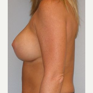 35-44 year old woman treated with Breast Lift after 3122360