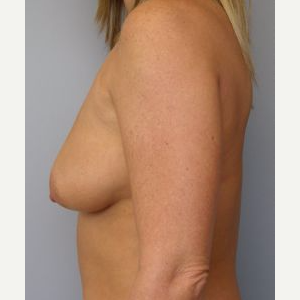 35-44 year old woman treated with Breast Lift before 3122360
