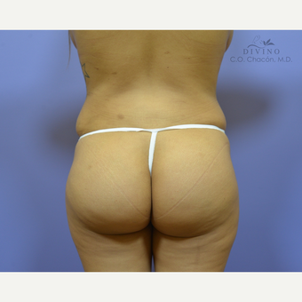 25-34 year old woman treated with Butt Implants after 3329531
