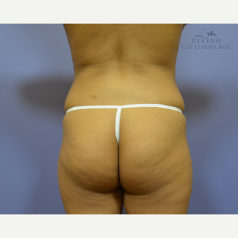 25-34 year old woman treated with Butt Implants before 3329531
