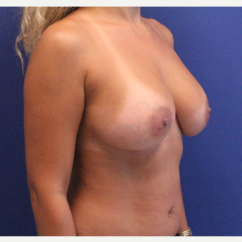 35-44 year old woman treated with Breast Augmentation after 3645278