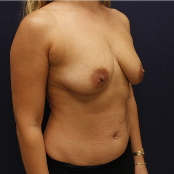 35-44 year old woman treated with Breast Augmentation before 3645278