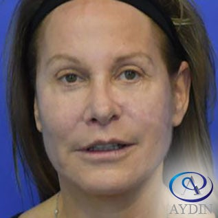 55-64 year old woman treated with Eyelid Surgery after 3213955