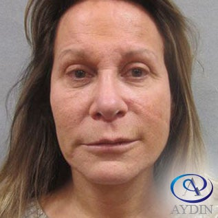 55-64 year old woman treated with Eyelid Surgery before 3213955