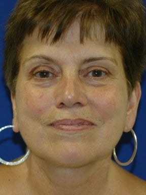 Lower Facelift and Necklift with Platysmaplasty