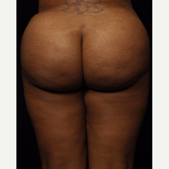 45-54 year old woman treated with Brazilian Butt Lift after 3542316