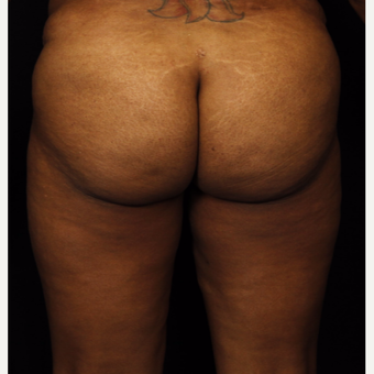 45-54 year old woman treated with Brazilian Butt Lift before 3542316