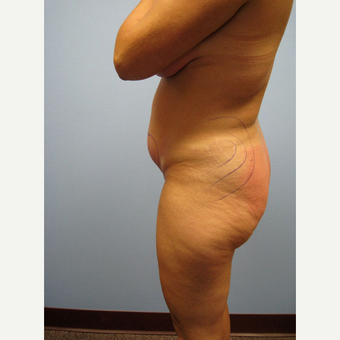 45-54 year old woman treated with Smart Lipo before 2018591