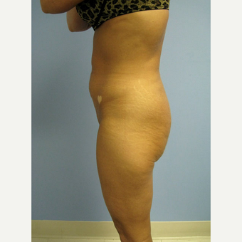 45-54 year old woman treated with Smart Lipo after 2018591